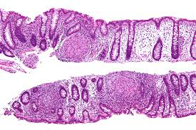 maladie de Crohn- tâches dans l'intestin