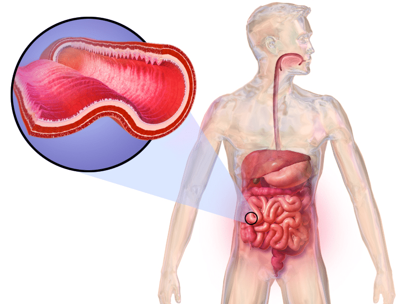 Maladie de Crohn- causes