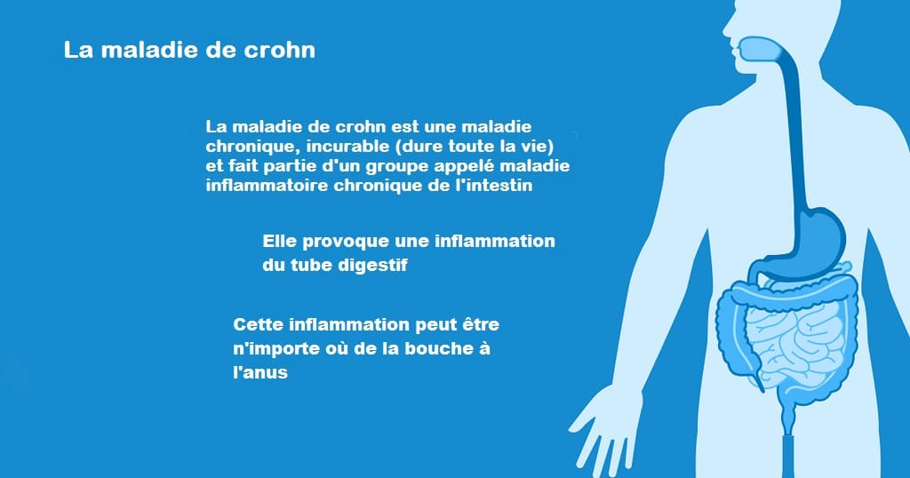 Maladie de Crohn- symptômrs