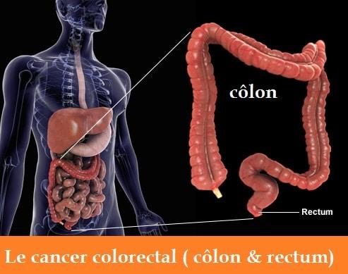 Cancer du côlon: causes, signes & symptômes. Stades & leurs traitements