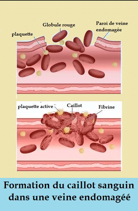 comment se forme le caillot dans une embolie pulmonaire