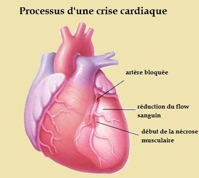Infarctus du myocarde-cœur malade