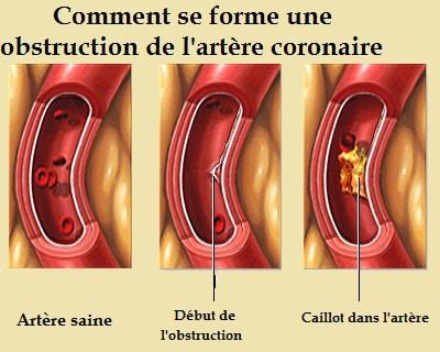 Infarctus du myocarde-caillot dans l'artère coronaire
