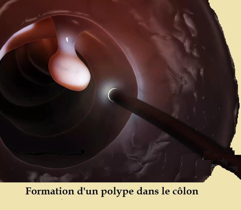 Polype- sang dans les selles