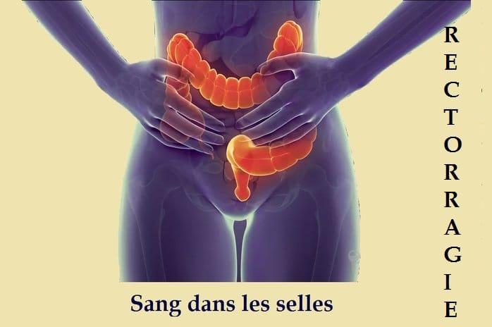 Causes du sang visible dans les selles : diarrhée, cancer, gastro, polype…