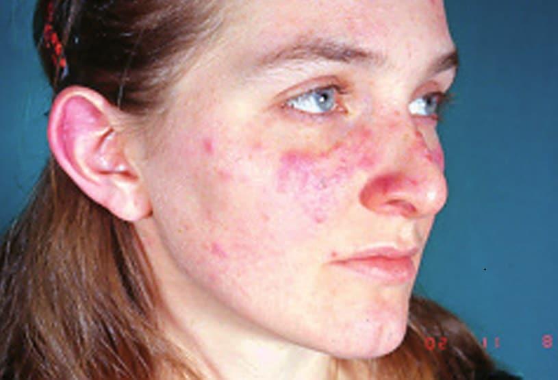les traces du lupus dans le visage