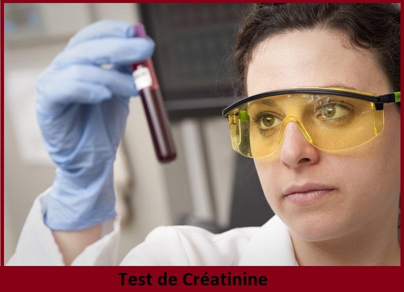 le test de Crétinine
