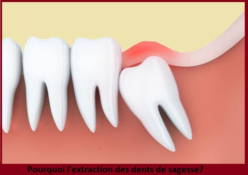 l'extraction des dents de sagesse