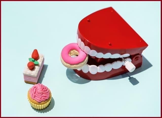 facette dentaire- comment blanchir les dents