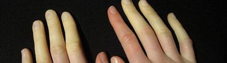maladie de Raynaud: symptômes et traitement