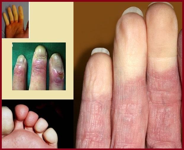Maladie de Raynaud: symptômes, causes et prévention