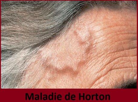 maladie de Horton ou artérite temporale