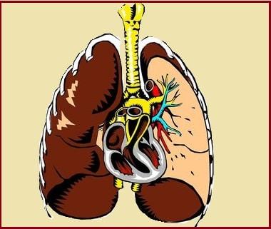 cancer de la plèvre- les poumons
