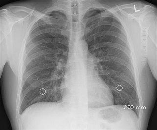cancer de la plèvre. une radiographie